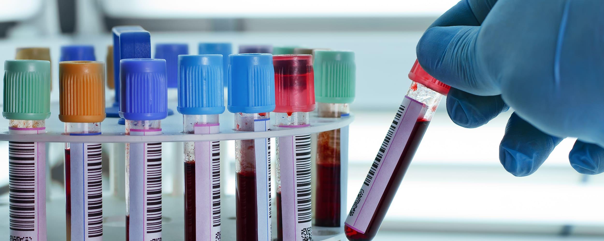 congress on blood transfusion